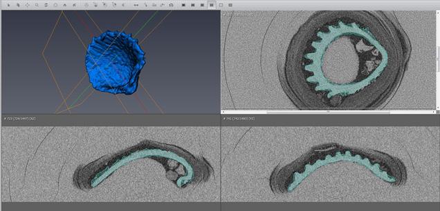 3Dソフトウェアを使用した内部構造の抽出