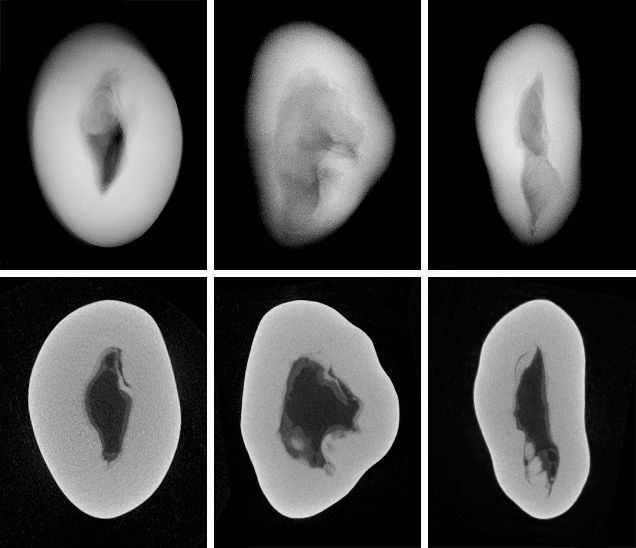 RTX and μ-CT images for a non-bead-cultured pearl