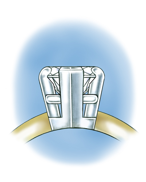 Close-up side view illustration of a pear-shaped center stone set in a five-prong platinum setting.
