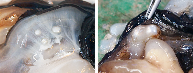 Pearls found in adjacent sacs or within the same sac