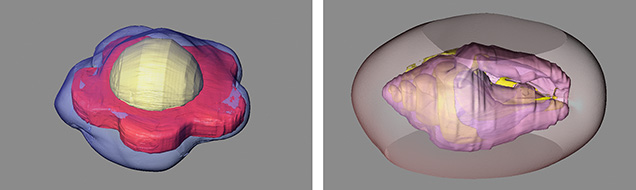 3D reconstructions of internal structures in bead-cultured pearls