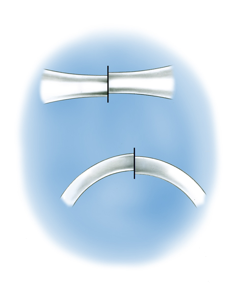Close-up Illustration of two poorly joined shanks