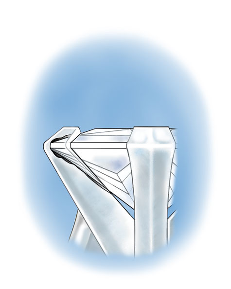 Close up cross-section illustration showing the chipped corner of a princess-cut platinum solitaire under the v-prong
