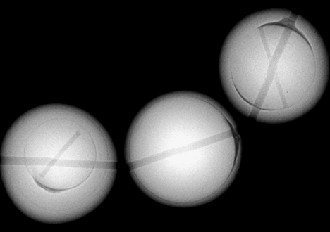 X-ray images of dyed freshwater cultured pearls.